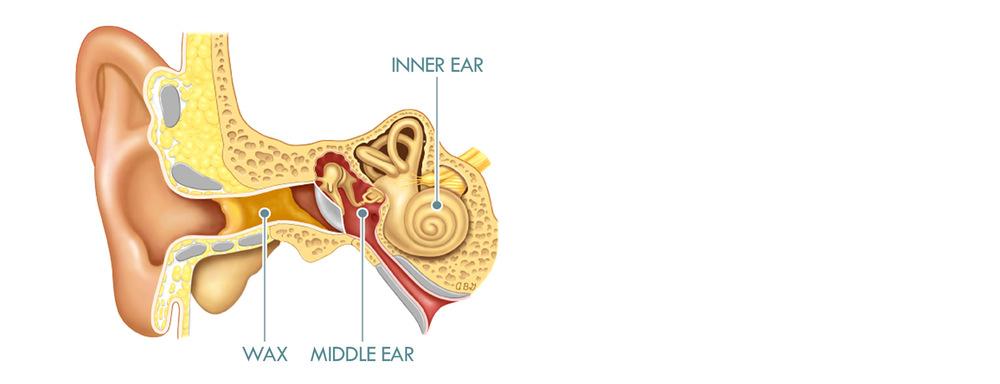 ear wax removal, micro suction, microsuction, ear wax, earwax removal, clear ears, blocked ears, poor hearing